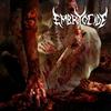 Embryocide Band Boise