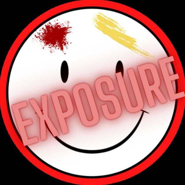 Exposure Band