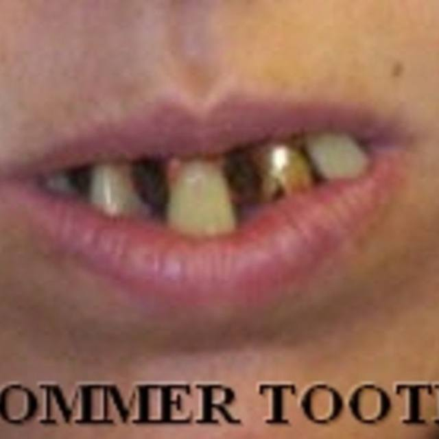 SOMMER TOOTH