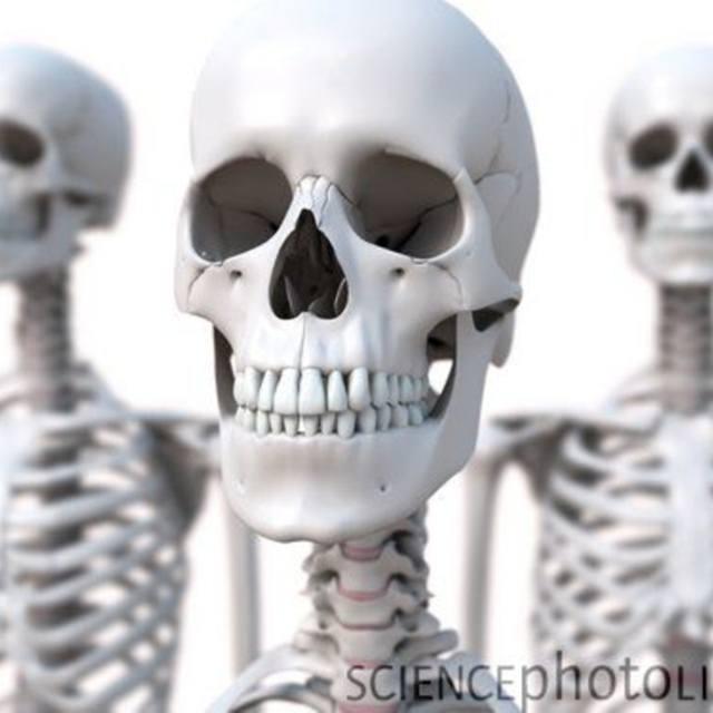 Blackdirt Boneyard